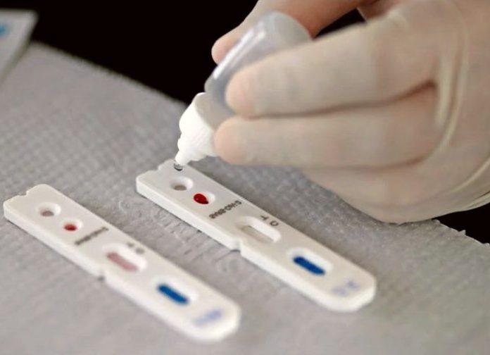 Pague Menos disponibiliza quatro tipos de testes para detecção do coronavírus
